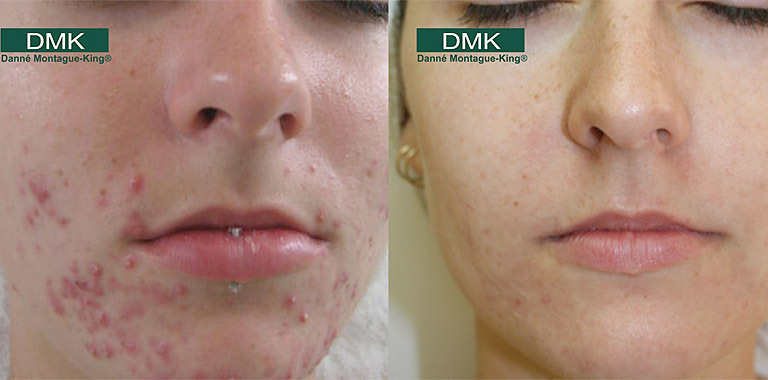 DMK Acne Results