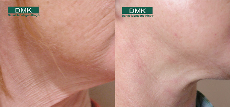 DMK Anti Ageing Treatments