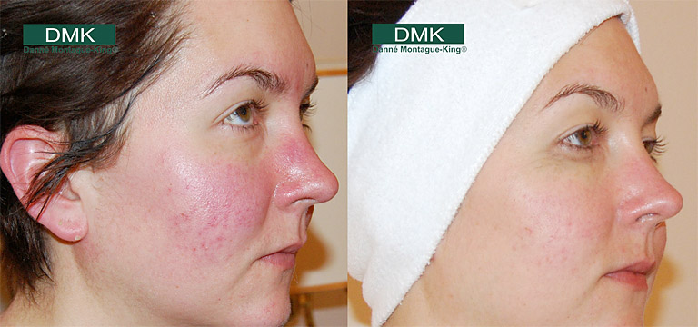 Rosacea Before and After
