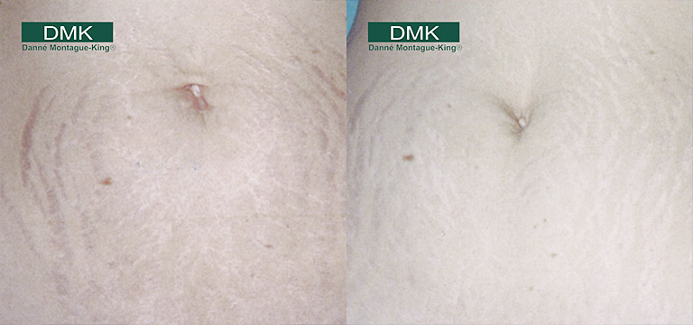 DMK Stretch Mark Treatments
